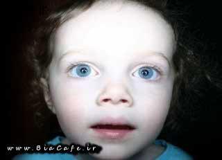 کودک کور و نابینا