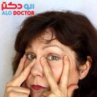 راه های رفع  سیاهی کبودی چشم/برای رفع  سیاهی کبودی چشم چه کار کنیم؟