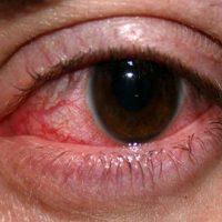 سکته کردن چشم/آیا چشم هم سکته می کند؟